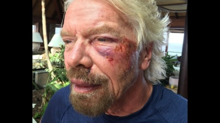 "Undated handout image issued by Virgin.com on Friday Aug. 26, 2016, of Sir Richard Branson after he was involved in an accident when he crashed his bicycle on Virgin Gorda, one of the British Virgin Islands in the Caribbean. The Virgin founder badly damaged his cheek and suffered severe cuts to his knee, chin, shoulder and body. Sir Richard said: ""I was heading down a hill towards Leverick Bay when it suddenly got really dark and I managed to hit a traffic hump in the road head on.(Virgin.com via AP)"